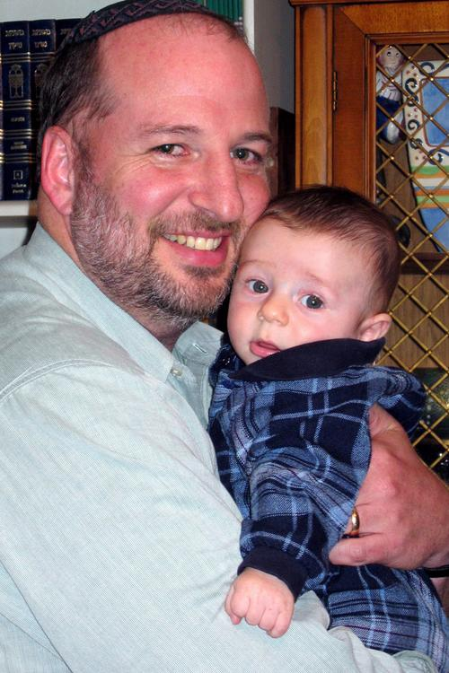 gee...why does he always have that rash on his face after I hold him?